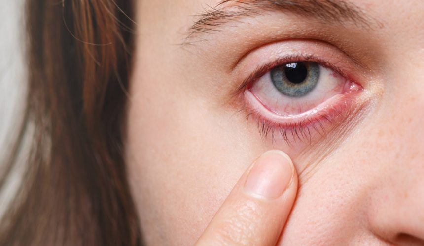 Are Your Eyes Ready for Allergy Season?