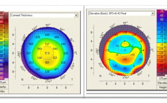 CCT-corneal thickness map